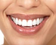 Cum să alegi un medic dentist – 10 criterii esențiale