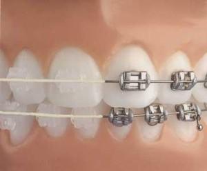 aparat dentar mixt
