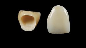coroana integral ceramica 2