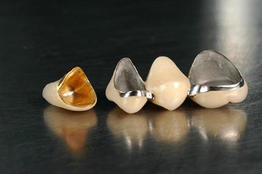 coroane metalo ceramice