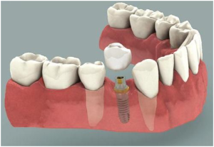 dental_implant31