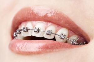 metalic-braces