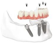Implant sau punte clasică