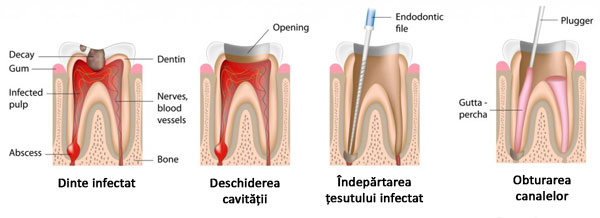 root-canal3