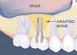 sinus lift