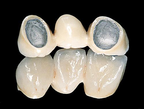 Punți Dentare Dentotal Clinic