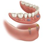 proteza inferioara pe implanturi 2