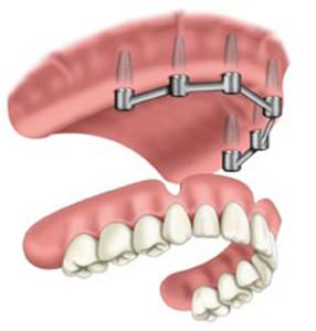 proteza superioara pe implanturi